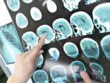 Искусственный интеллект может диагностировать, классифицировать кровоизлияния в мозг по рентгеновским снимкам.